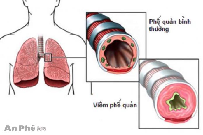 Tổng quan về bệnh viêm phế quản và cách điều trị hiệu quả - Ảnh 1