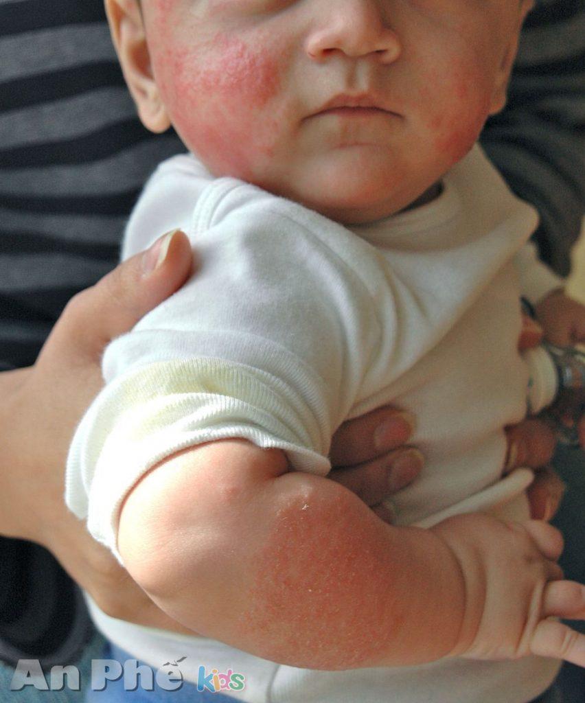 Chẩn đoán và điều trị viêm phế quản cấp ở trẻ em như thế nào - trẻ bị dị ứng